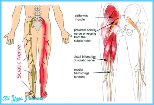 Causes-of-Sciatica-Pain.jpg