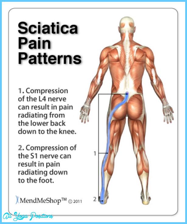 sciatica-pain-patterns.jpg