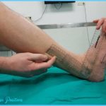 Goniometric-measurement-of-dorsiflexion-plantarflexion-and-dorsiflexion-of-the-ankle-are.jpg