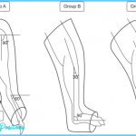 Schematic-diagram-of-the-immobilization-Group-A-was-immobilized-at-plantarflexion.png
