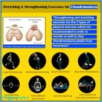 stretching-strengthening-exercises-for-chondromalacia-preview.jpg