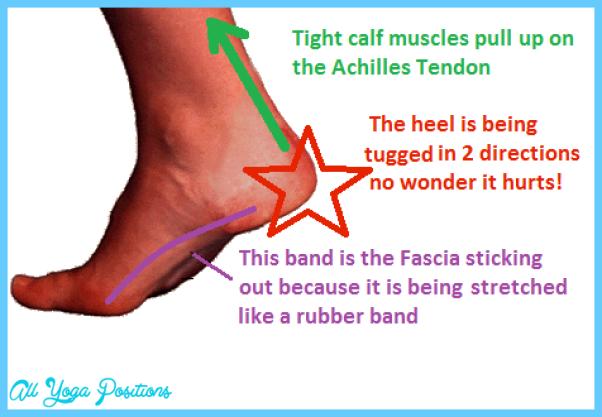 tight-calves-sore-fascia.png