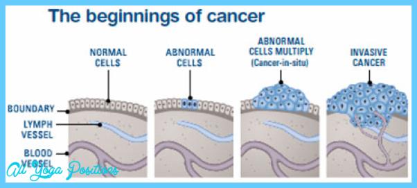 begining_of_cancer.png