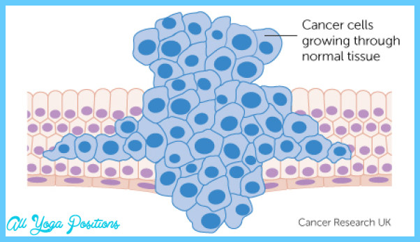 cancer-cells-growing-through-normal-tissue.jpg