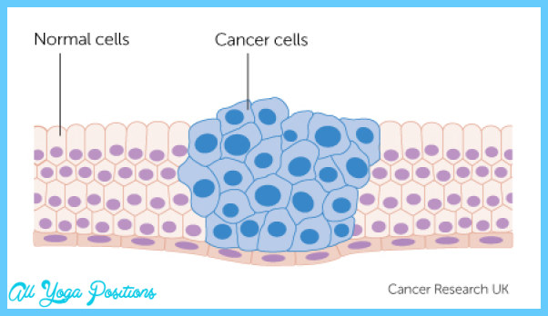 cancer-cells-growing.jpg