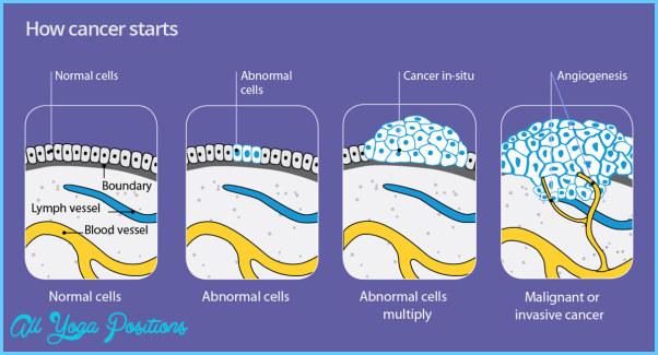 cancer-graphic.jpg