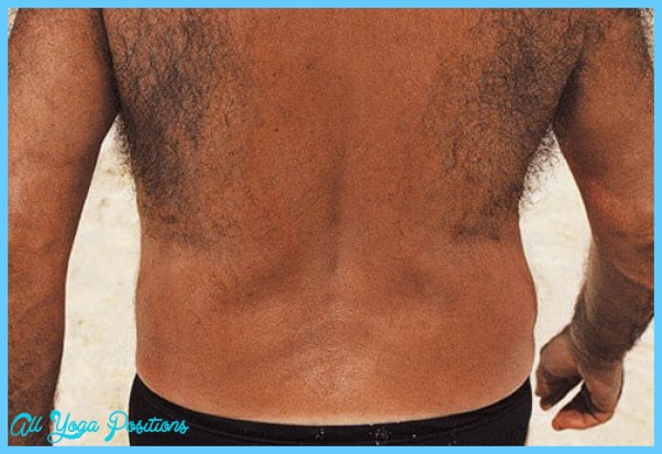 embarrassing-male-body-problems-s1-man-with-hairy-back.jpg