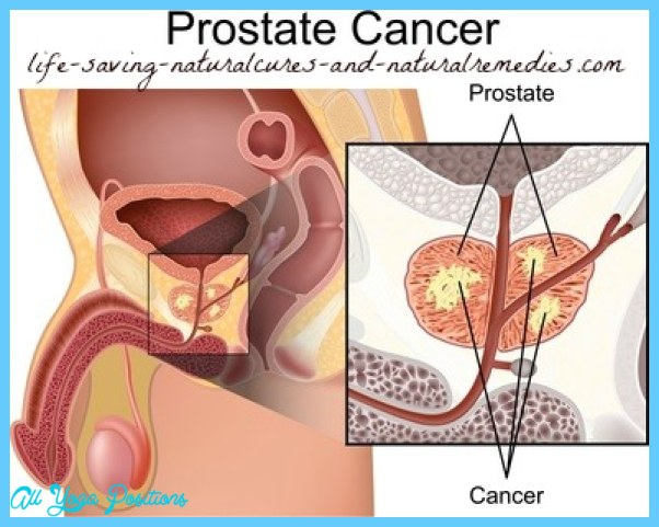 prostate-cancer-photo2.jpg