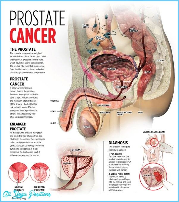 Prostate Cancer_2.jpg