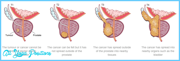 Prostate_Cancer_Stages.png