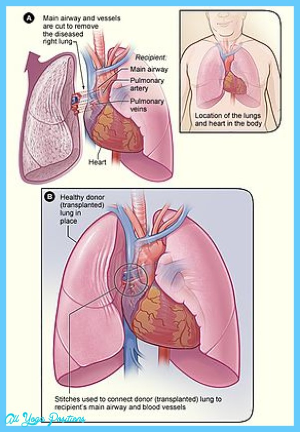 THE HEART-LUNG CONNECTION_20.jpg
