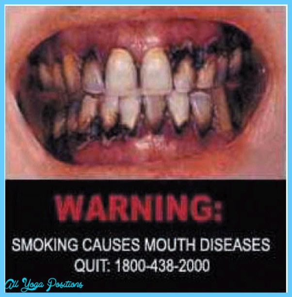 tobacco_large_Singapore_oral_01_large_en.jpg