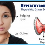 Calcium and Vitamin D Graves Hyperthyroidism_4.jpg