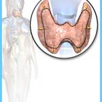 Calcium and Vitamin D Graves Hyperthyroidism_7.jpg