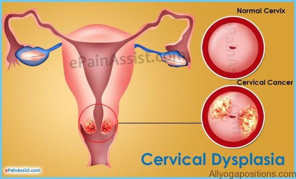Cervical Dysplasia Treatment_16.jpg