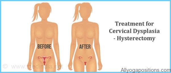 Cervical Dysplasia Treatment_17.jpg