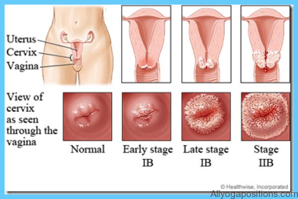Cervical Dysplasia Treatment_7.jpg