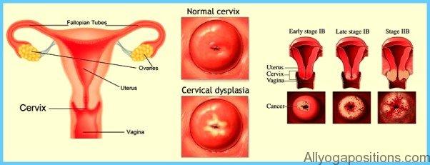 Cervical Dysplasia Treatment_9.jpg