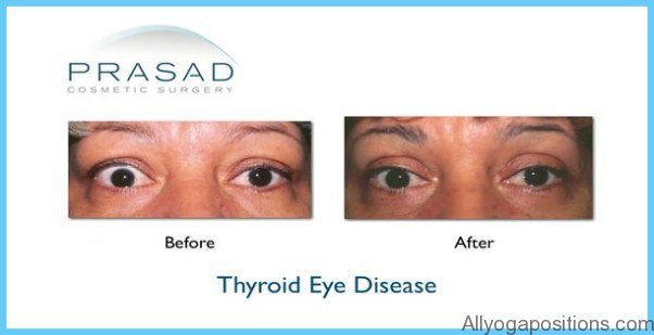 Graves' Disease Graves Hyperthyroidism_0.jpg