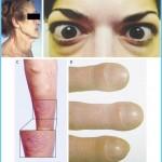 Graves' Disease Graves Hyperthyroidism_12.jpg