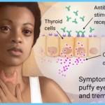 Graves' Disease Graves Hyperthyroidism_14.jpg