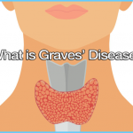 Graves' Disease Graves Hyperthyroidism_15.jpg