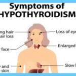 Graves' Disease Graves Hyperthyroidism_3.jpg