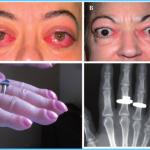 Graves' Disease Graves Hyperthyroidism_4.jpg