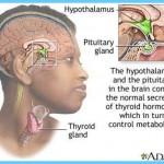 Graves' Disease Graves Hyperthyroidism_5.jpg