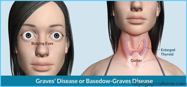 Graves' Disease Graves Hyperthyroidism_6.jpg