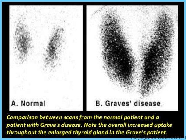 Graves' Disease Graves Hyperthyroidism_8.jpg