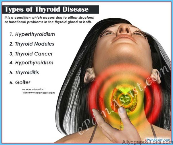 Hypothyroidism Causes Symptoms and Treatments_7.jpg