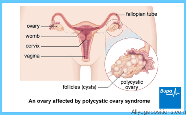 Ipriflavone for Polycystic Ovary Syndrome PCOS_1.jpg