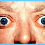 Managing Graves Hyperthyroidism_15.jpg