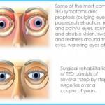 Thyroid Disease Eye Symptoms_0.jpg