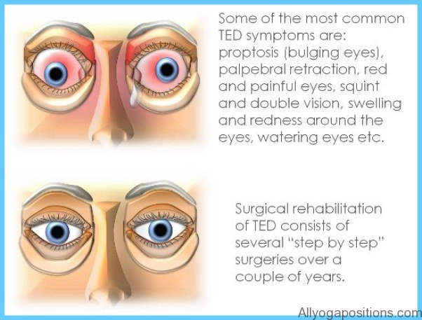 Thyroid Disease Eye Symptoms Allyogapositions Com