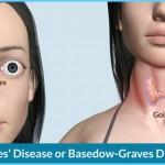 Thyroid Disease Eye Symptoms_1.jpg