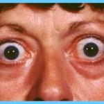 Thyroid Disease Eye Symptoms_11.jpg