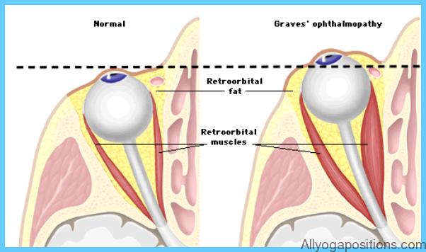 Thyroid Disease Eye Symptoms_12.jpg