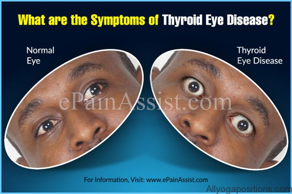 Thyroid Disease Eye Symptoms_14.jpg