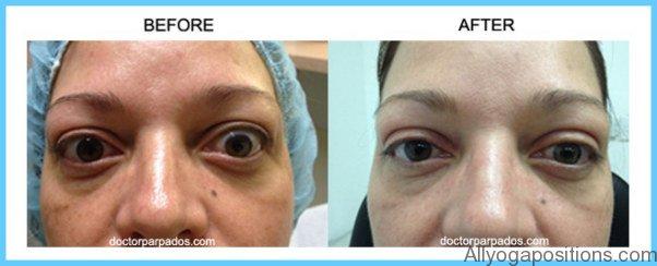 Thyroid Disease Eye Symptoms_15.jpg