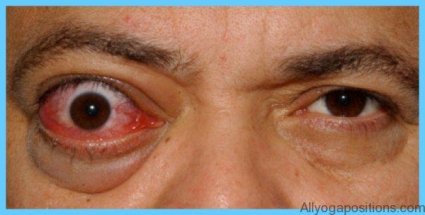 Thyroid Disease Eye Symptoms_16.jpg