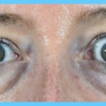 Thyroid Disease Eye Symptoms_3.jpg