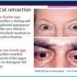 Thyroid Disease Eye Symptoms_5.jpg