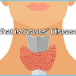 Vitamin E Graves Hyperthyroidism_1.jpg