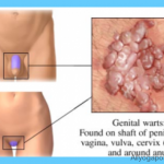 what-is-cervical-dysplasia-symptoms-treatment-causes_10.png